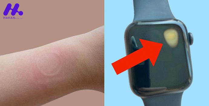 گرم شدن بیش از حد Apple Watch SE